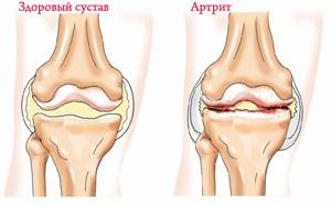 Artrit kolennogo sustava