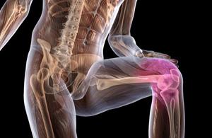 Osteoartroz kolennogo sustava