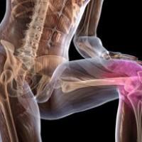 Osteoartroz-kolennogo-sustava