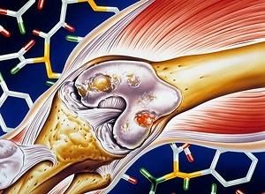artroz kolennogo sustava