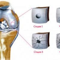 Sinovit-kolennogo-sustava